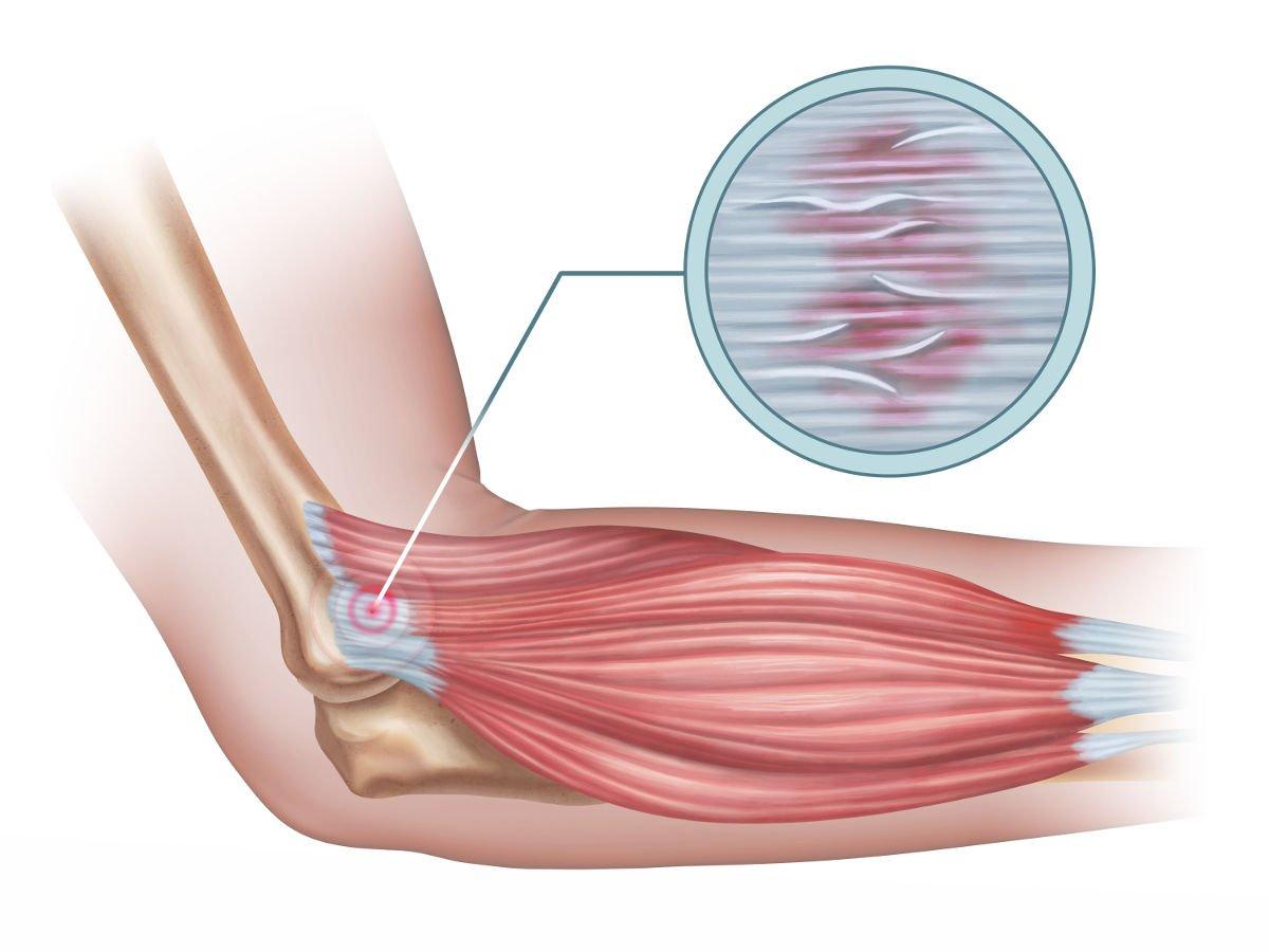 diagram of a tennis elbow